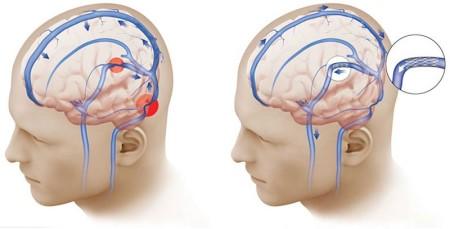 Что влияет на изменение внутричерепного давления