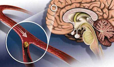 Самые опасные симптомы гипертонии