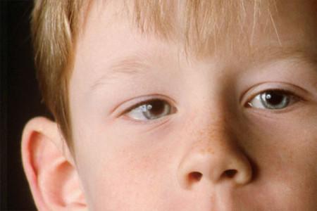 Как определить показатели внутричерепного давления у детей?