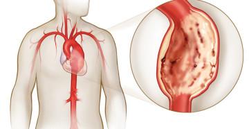 Что представляет собой аневризма аорты