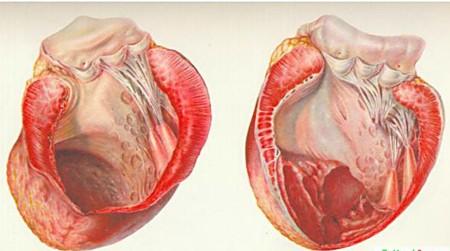 Аневризма перегородки сердца