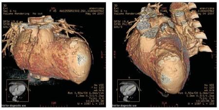 Причины аневризмы сердца