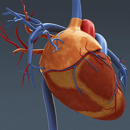 Аневризма сердца человека