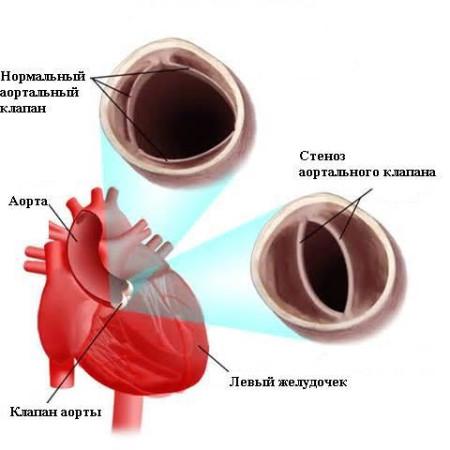 Стеноз аортального клапана