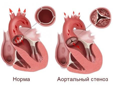 Аортальный стеноз клапана