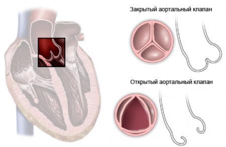 Аортальный клапан в отрытом и закрытом состоянии