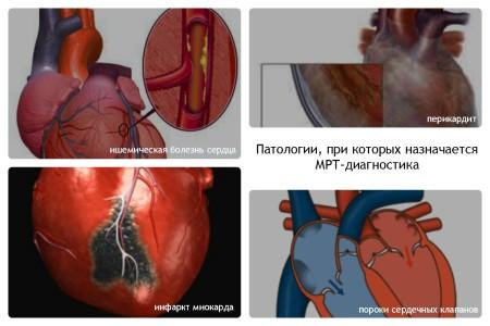 Патологии сердца при которых назначается МРТ