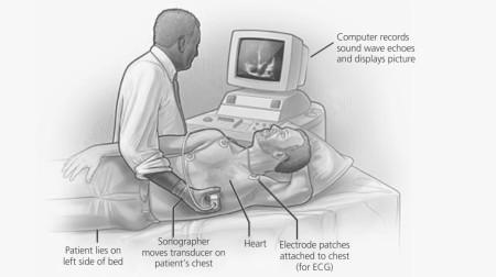 Процедура обследования сердца