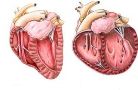 Расширение сердца