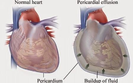 Сравнение нормального и расширенного сердца