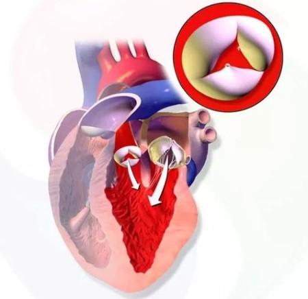 Признаки аортальной регургитации