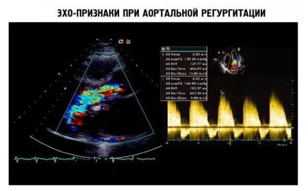 Эхо КГ при аортальной регургитации