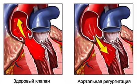 Аортальная регургитация
