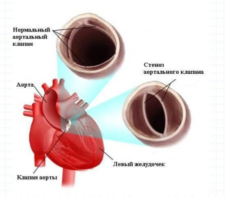 Стеноз клапана сердца