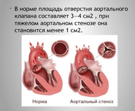 Что значит стеноз аорты
