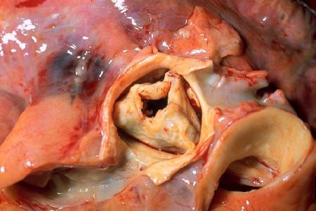 Клапанный аортальный стеноз