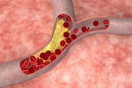 Атеросклероз аорты что это: Как лечить аортосклезоз