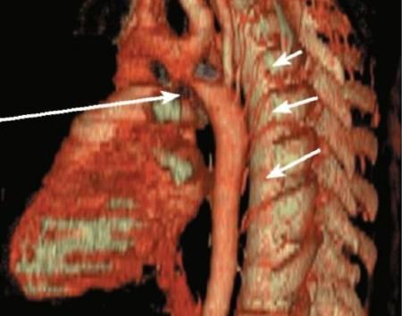 Коарктация артерии