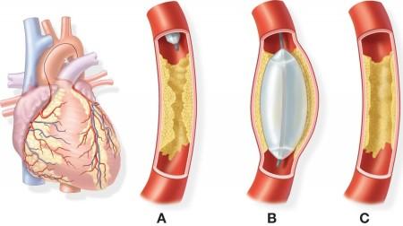 Шунтирование сердца и сосудов