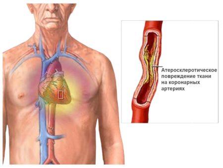 Реабилитация после стентирования сосудов сердца