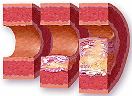Уплотнение аорты в разрезе