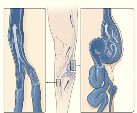 Симптомы венозной недостаточности