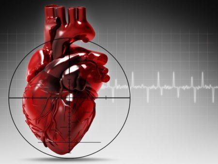Кардиограмма при инфаркте миокарда