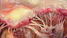 Инфекционный миокардит