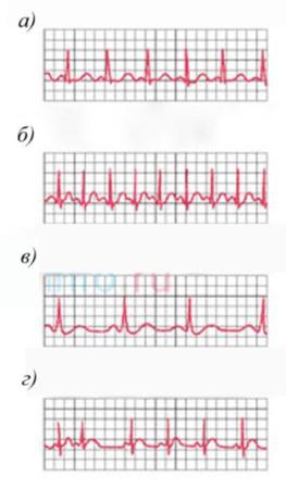 Как расшифровать электрокардиограмму сердца