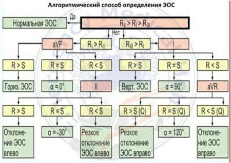 Алгоритм определения электрической оси сердца (ЭОС)