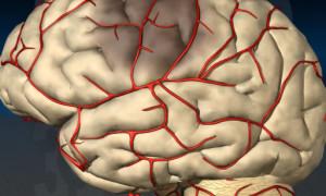 Как сузить сосуды головного мозга