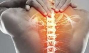 Причины, симптомы и лечение остеохондроза шейно-грудного отдела (ШГО) позвоночника