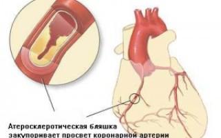Жизнь после шунтирования сосудов сердца