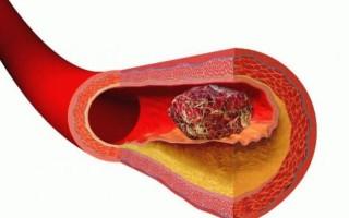 Причины повышенной свертываемости крови, симптомы и какими последствиям грозит данная патология при беременности?