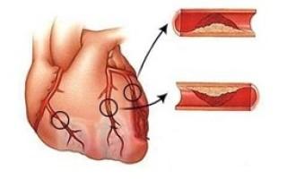Острый трансмуральный инфаркт нижней стенки миокарда