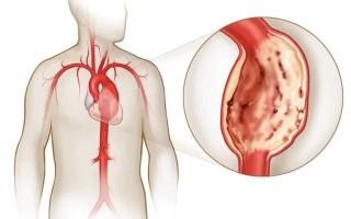 Аневризма сердца: Симптомы расширения аорты сердца