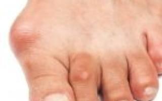 Основные симптомы и лечение при артрите пальцев ног, провоцирующие факторы