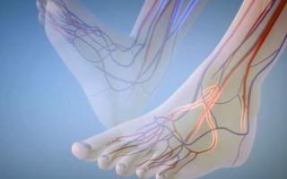 Как укрепить сосуды и капилляры на ногах