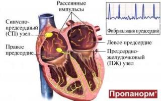 Причины фибрилляции предсердий, симптомы и формы, методы диагностики и лечения