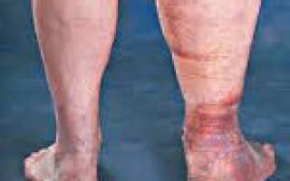 Посттромбофлебитическая болезнь нижних конечностей