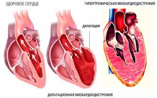 Что такое миокардиодистрофия