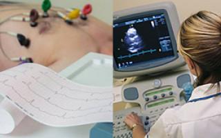 Что лучше ЭКГ или УЗИ сердца — особенности выполнения процедур