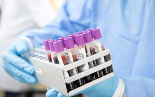 Показания к проведению анализа крови на альбумин, нормы, причины повышения или снижения показателя