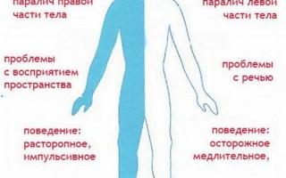 Инсульт с кровоизлиянием в мозг последствия