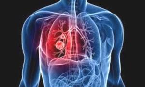Тромбоэмболия легочной артерии смерть