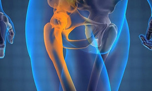 Из-за чего возникают боли в тазобедренном суставе при обычной ходьбе, методы лечения