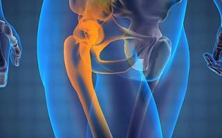 Как осуществляется лечение и диагностика острых болей в области тазобедренного сустава
