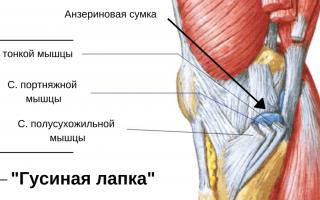 Где в колене человека находится гусиная лапка, что за болезнь бурсит и кто ею болеет