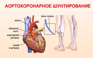 Аортокоронарное шунтирование показания