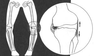 Признаки варусной деформация и как лечить искривление стопы у детей
